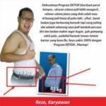 Jual SmartDETOX di Malang WA 081905353753 Free Ongkos Kirim Seluruh Indonesia
